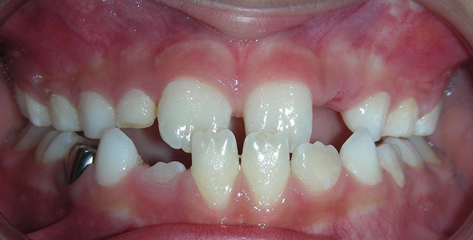 Child's teeth before orthodontic treatment for an underbite (Negative overjet)